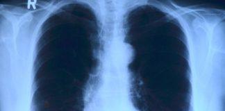 Fumar es la primera causa de mortalidad evitable en todo el mundo