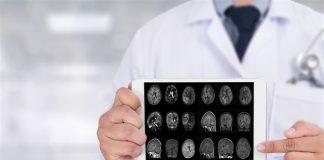 Realizan el mapeo completo del daño que genera el Alzheimer al cerebro