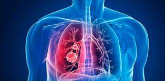 Realizan en la Cámara de Diputados foro sobre hipertensión pulmonar