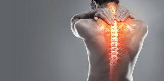 ¿Tienes una hernia discal? Es momento de hacer ejercicio y bajar de peso