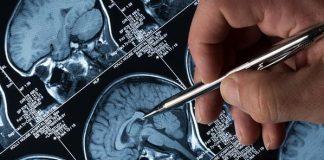 Preocupante el rezago de tratamientos para la epilepsia en países pobres