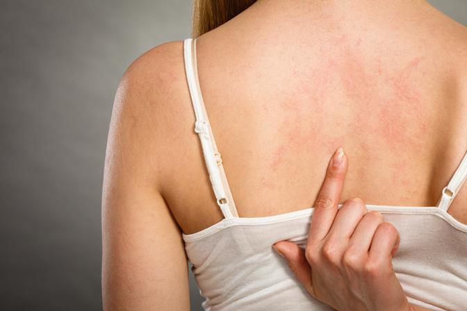 La psoriasis es una enfermedad grave de la piel, pero no es contagiosa