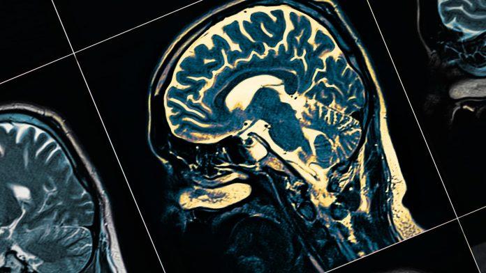 Médicos del IMSS llaman a redoblar cuidados hacia pacientes con males neurológicos