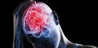 Científicos encuentran evidencia de daño cerebral en pacientes covid