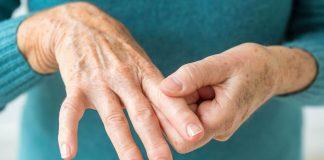 Molécula de laboratorio, nuevo tratamiento para artritis