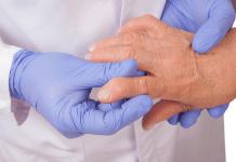 Tratamiento para artritis podría funcionar para Covid-19