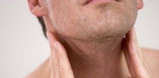 Pacientes con linfoma deben mantenerse en casa y seguir su tratamiento médico, ante COVID-19