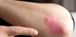 Día mundial de la Psoriasis, cómo vivir con ella