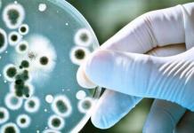 Detectan caso de difteria, tras 20 años de que se erradicara enfermedad