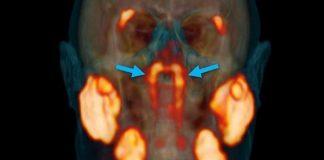 Médicos aseguran haber descubierto un nuevo órgano en la garganta
