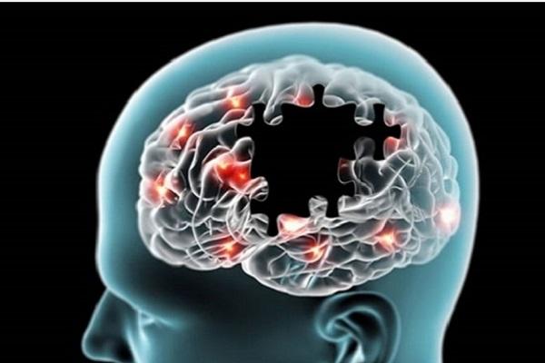 Están por aprobar un medicamento contra el Alzheimer