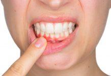 Investigador del Cinvestav estudia los efectos de diabetes e inflamación bucal en el sistema nervioso