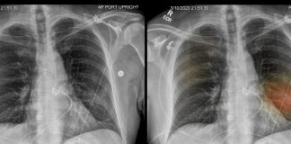 Trasplante de pulmón podría salvar a pacientes con Covid-19