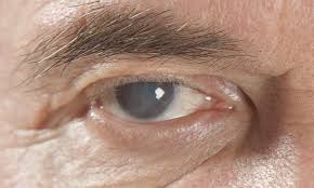 Rejuvenecer células, el próximo tratamiento para tratar el glaucoma