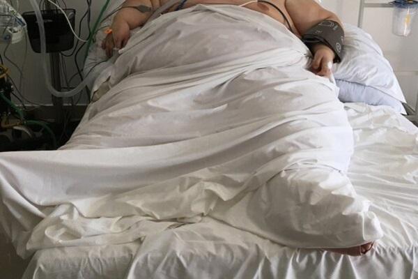 Estudio revela que la obesidad acelera el crecimiento tumoral