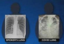 Covid-19, incluso en asintomáticos, daña los pulmones como si fumaras toda una vida