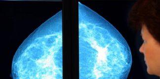 Hormonas masculinas podrían ser una clave para curar el cáncer de mama