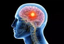La curación de lesiones cerebrales se relaciona con un tipo de cáncer, advierte estudio