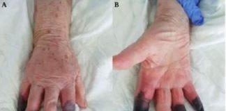 Se añade un nuevo síntoma al Covid-19, la gangrena