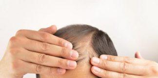 El estrés y la alopecia están relacionados