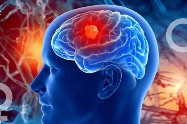 La hormonas sexuales estimulan el crecimiento de tumores cerebrales, alerta la UNAM
