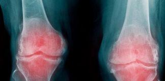 Te contamos qué es la artrosis y cómo prevenirla