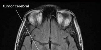 Avanza el desarrollo de una vacuna contra el cáncer cerebral