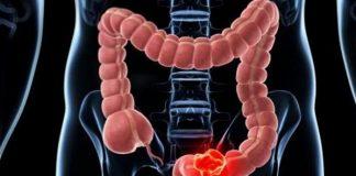 45% de personas diagnosticadas con cáncer de colon mueren