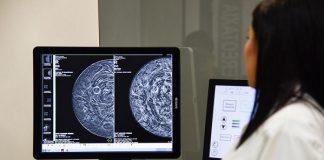 Un tipo de cáncer de mama podría tratarse sin quimioterapia