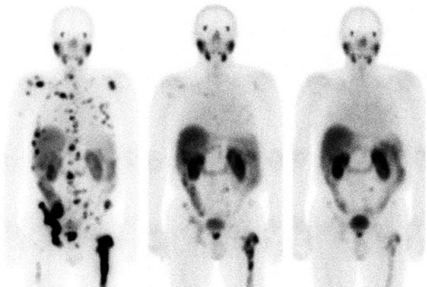 Teragnosis, esperanzadora terapia para tratar el cáncer con medicina nuclear
