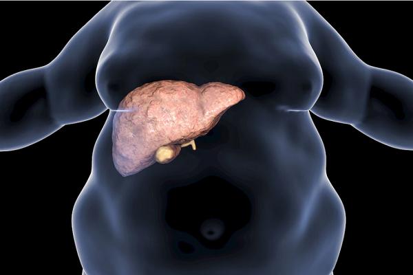 Se calcula que 50% de mexicanos podría tener hígado graso