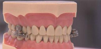 Crean un 'candado' de boca para combatir obesidad