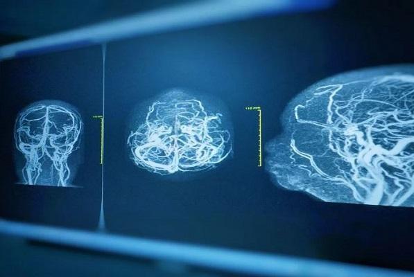 Un aneurisma, cómo detectarlo y sus consecuencias