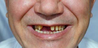 Una pérdida de dientes se asocia a un mayor deterioro cognitivo