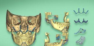 La reconstrucción mandibular en 3D, un paso a la medicina del futuro