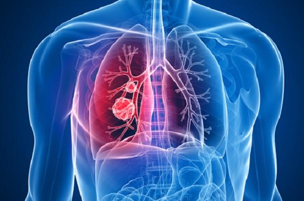 COVID-19 podría elevar casos de cáncer de pulmón