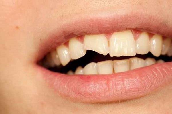 39% de los traumatismos dentales se produce al hacer deporte