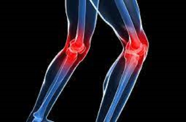 Dolor de rodilla y estos síntomas indican que debes ir al médico