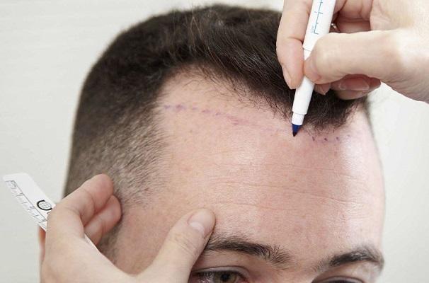 La implantología capilar contra la calvicie