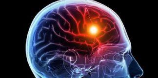 50% de quienes sufren un infarto cerebral tiene secuelas