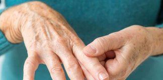 Principalmente, las manos se deforman por artritis y artrosis